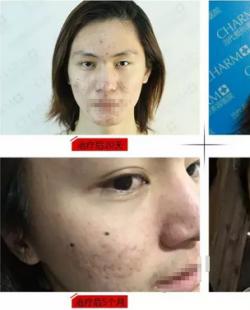 """重庆当代祛痘案例前后对比照片 看校草的""""战痘""""全攻略"""