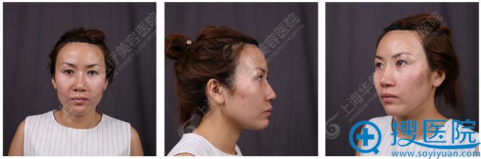 隆鼻+植发术前照片