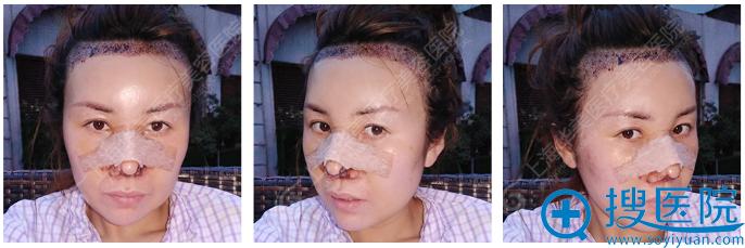 上海华美鼻综合+植发术后第三天