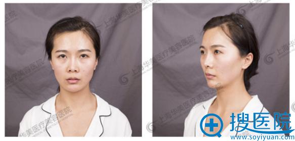隆鼻和脂肪填充术前照片