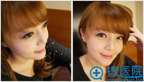 假体隆鼻和下巴手术20天的图片