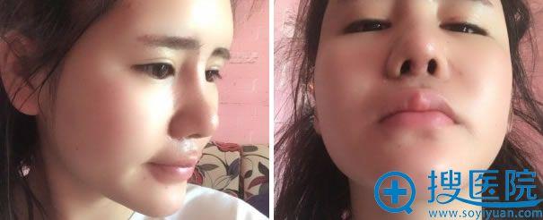 做鼻综合手术拆线的效果照片