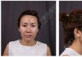 看我找上海华美谢卫国做鼻综合+王书闳植发2个月案例图效果好吗