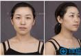 【实例】看上海华美叶丽萍割的双眼皮+提肌案例图效果怎么样