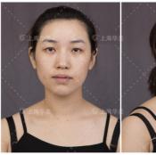 内双的我鼓起勇气找上海华美叶丽萍医生做了双眼皮和提肌手术