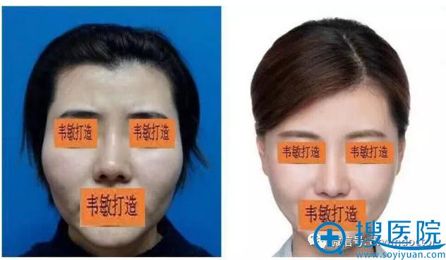 上海九院韦敏教授鼻综合修复案例图