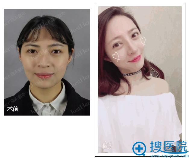 宁波珈禾整形医院肋软骨鼻综合案例