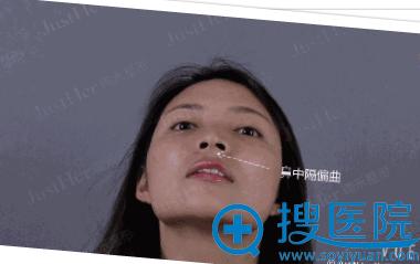 鼻综合术前照片