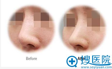 肋软骨鼻修复案例