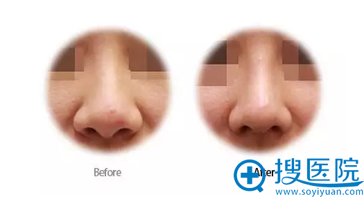 肋软骨垫鼻尖案例图
