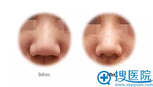 肋软骨改善肉鼻子案例效果