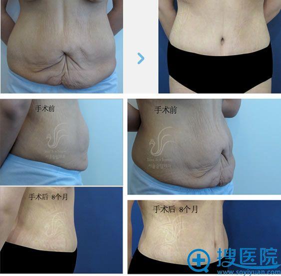 韩国slim外科产后肚皮下垂整形案例