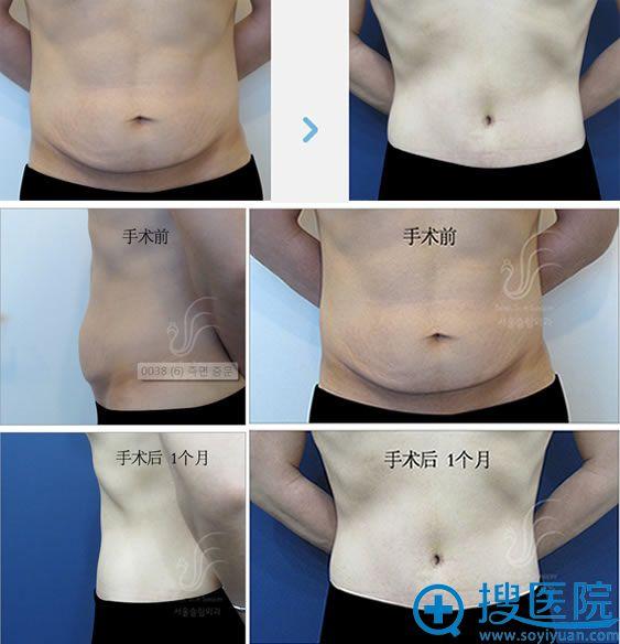韩国slim外科朴润赞院长肚子下垂案例