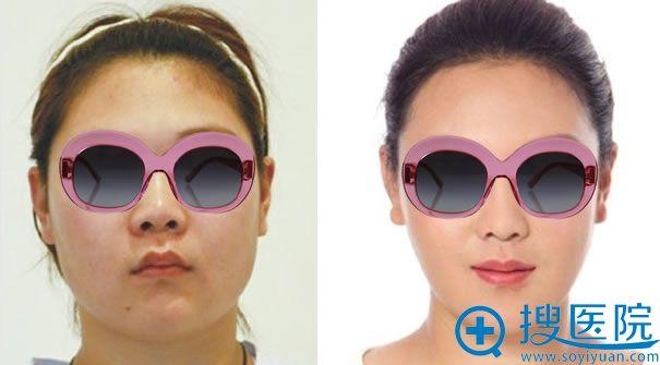 达州双均整形医院瘦脸针案例