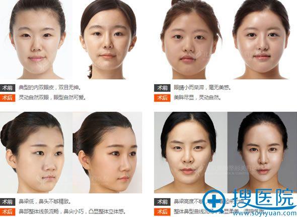 北京雅韵王海南教授五官整形案例