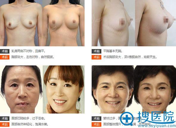 北京雅韵王海南教授自体脂肪填充案例