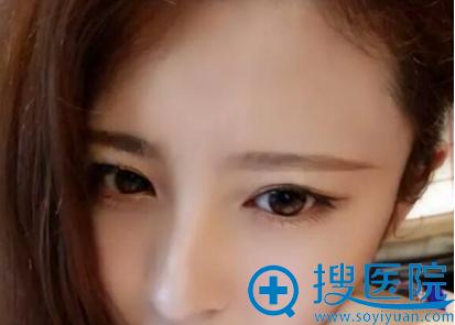 双眼皮术前照片