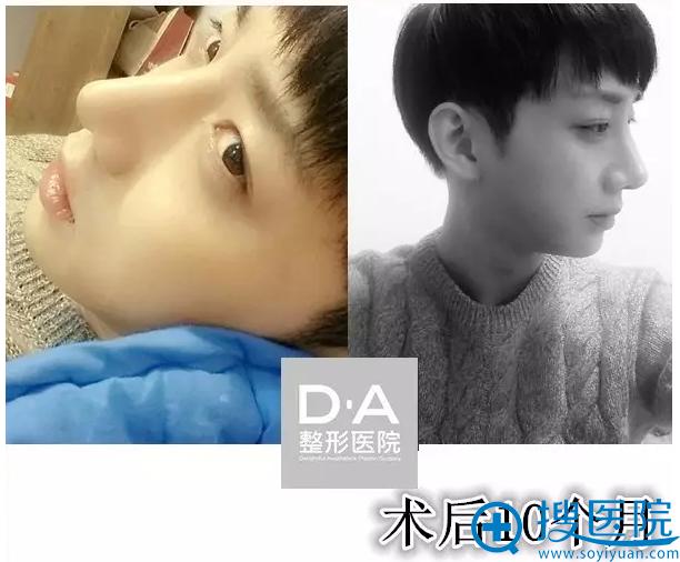 韩国DA整形医院两颚+隆鼻术后10个月效果图