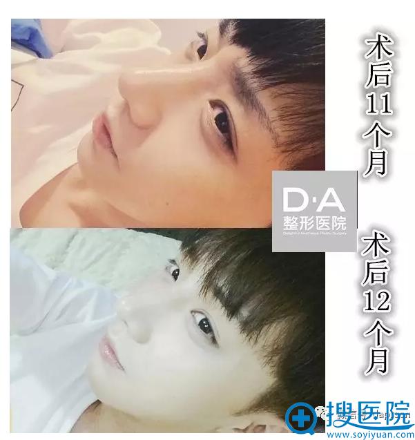 韩国DA整形医院两颚+隆鼻术后1年生活照