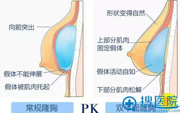 内窥镜假体隆胸的优势