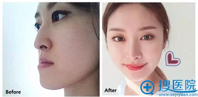 韩国ID医院牙齿反合矫正手术前后对比图