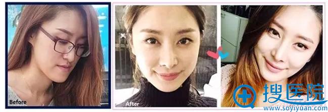 韩国id医院双鄂手术矫正反颌术后1年图片
