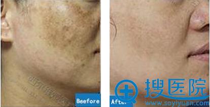 三亚西尔维娅祛黄褐斑术后恢复效果对比