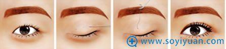 普通单眼皮采用方案