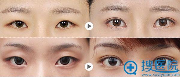 广州懿美秀双眼皮案例效果图