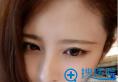 【案例】90后找上海九院罗敏做的欧式双眼皮1个月效果图分享