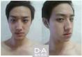 韩国双颚手术哪家做得好 韩国DA医院男士双颚+隆鼻案例图分享