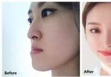 反颌如何矫正 韩国ID整形医院牙齿反合矫正手术案例步骤图分享