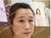 上海哪里做超声刀好 上海华美超声刀面部除皱3个月案例效果分享