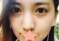 韩国MVP整形医院鼻综合术后恢复全过程见证翘鼻美女的诞生