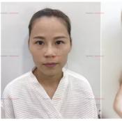刚在上海首尔丽格做完自体脂肪填充全脸术后5天恢复过程图分享