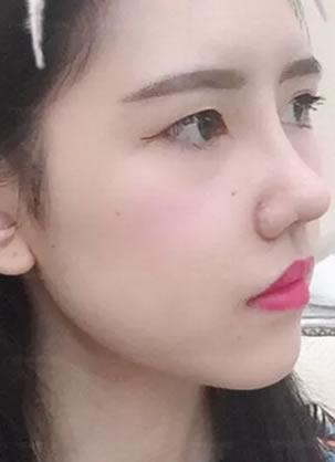 广州海峡鼻综合案例:膨体隆鼻+鼻基底缩窄术真实恢复期图片