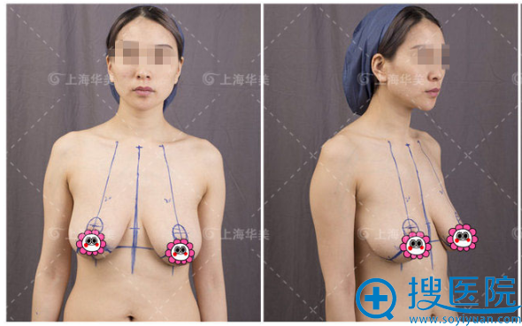 术前乳房下垂严重