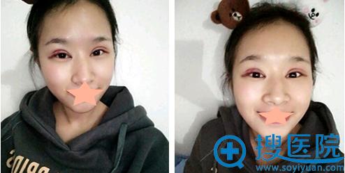 隋长清全切双眼皮+开眼角术后2天