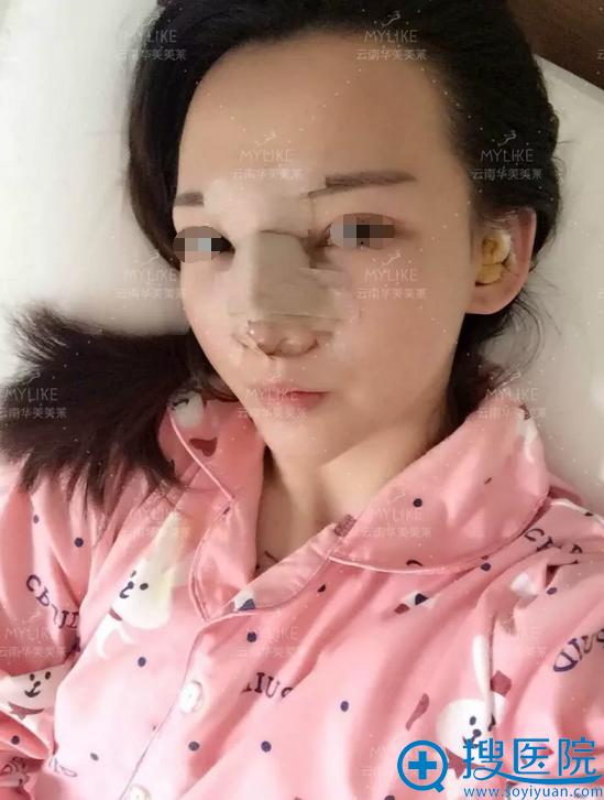 昆明华美美莱鼻综合术后天效果