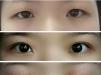 上海九院割双眼皮罗敏好还是孙英好?有没有双眼皮案例图?