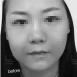 【案例】婴儿肥如何瘦脸?深圳香蜜丽格热拉提帮你解决问题