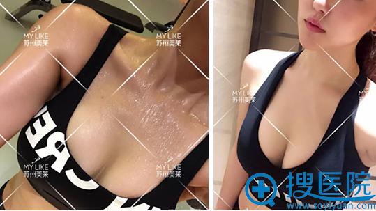 苏州美莱假体丰胸术后60天胸部特写
