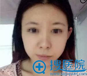 福州名韩徐丽珍瘦脸针术前照