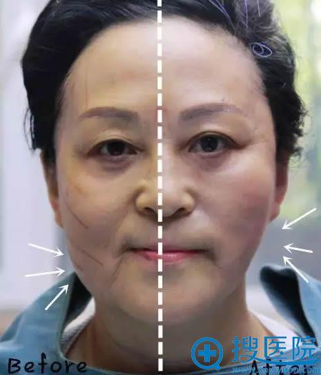 线雕手术中刚做完一侧脸的对比效果