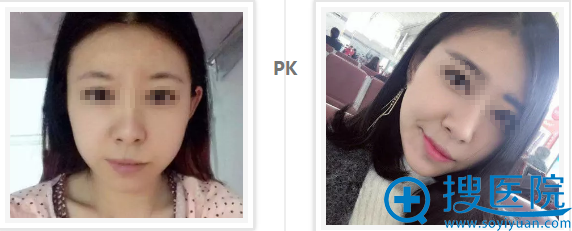 福州名韩徐丽珍瘦脸针治疗1个月前后对比效果图