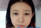 福州名韩徐丽珍瘦脸针术后效果对比图 十月特惠一针瘦脸980元