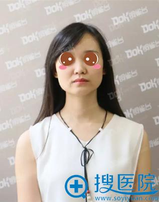 重庆铜雀台田鹏飞面部线雕提升手术术前照
