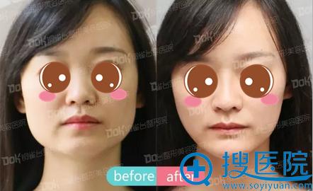 田鹏飞面部线雕提升手术前后对比照片