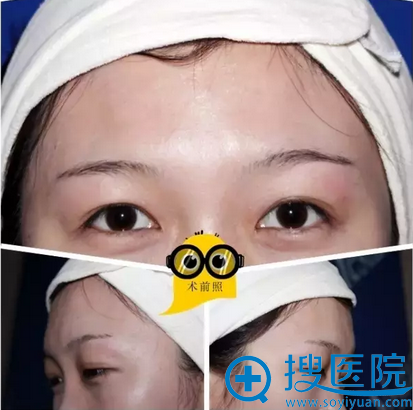 厦门安黛美整形韩式雾眉+美瞳线纹绣过程及结痂蜕变图分享