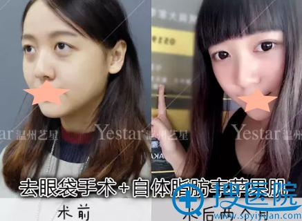 Yestar温州艺星去眼袋手术术后2个月恢复对比图